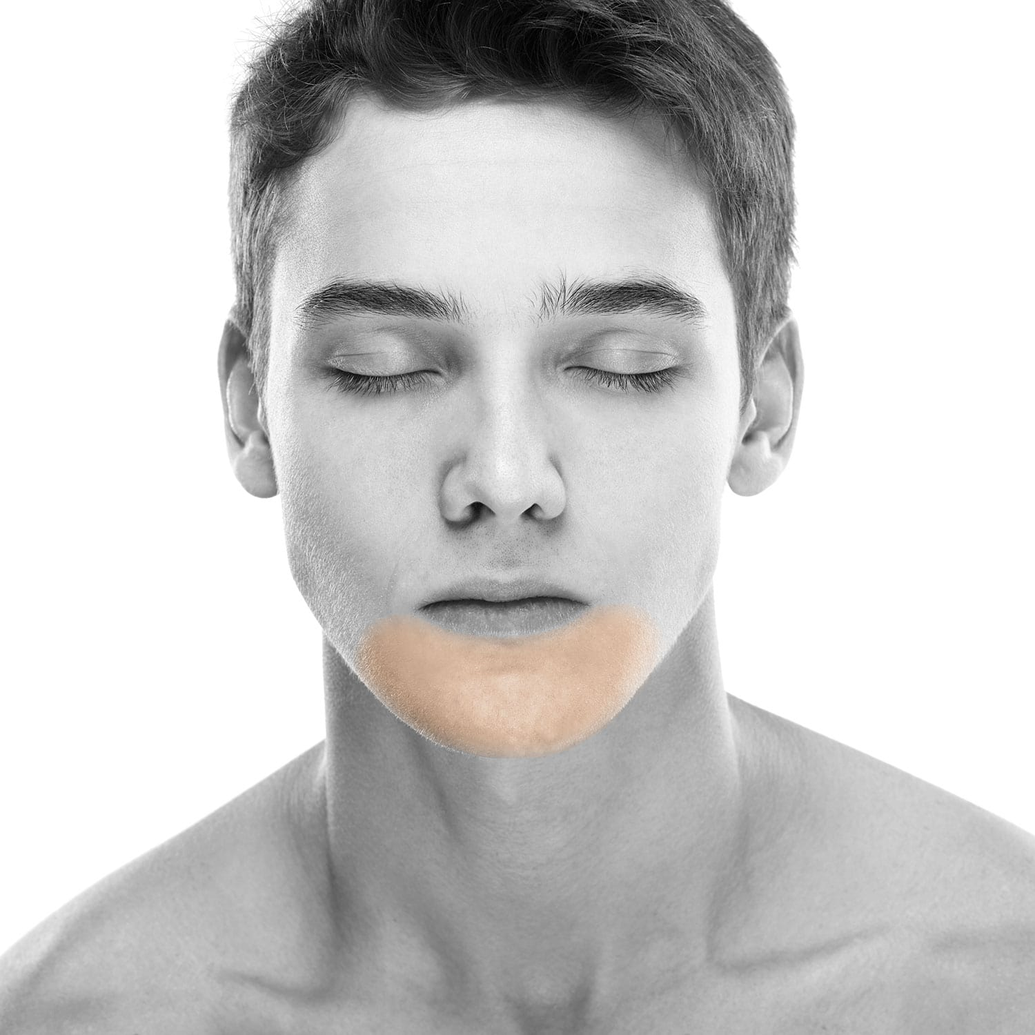 Men's Extended Chin Laser Hair Removal in NYC