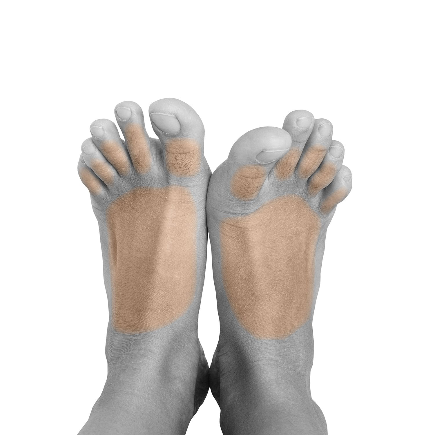 Men's Feet Laser Hair Removal In NYC